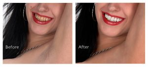 before and after dental restoration