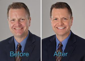 photographic portrait retouching